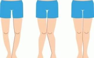 Упражнения для выпрямления ног