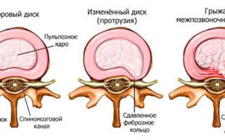 Упражнения для закачки спины при грыже
