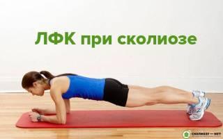 Комплекс упражнений при сколиозе 2 степени