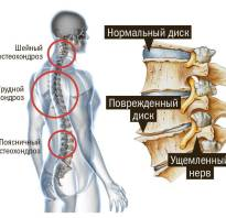 Гимнастика при грудном и шейном остеохондрозе