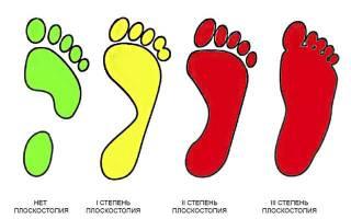 Какие упражнения противопоказано выполнять при плоскостопии